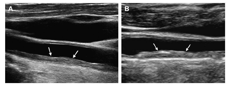 intima-media-sonnih-arteriy
