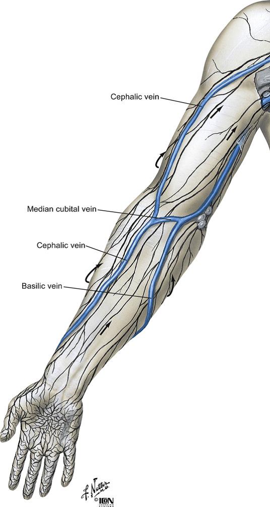 Лечение варикоза лазером москва