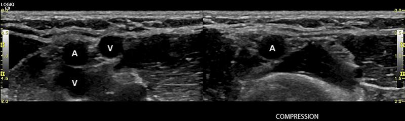 Лечение тромбоза вен сетчатки