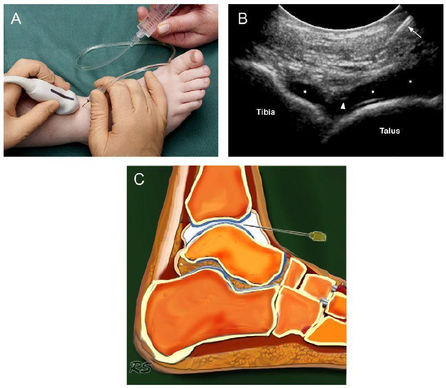 Внутрисуставная инъекция в плечевой сустав техника колено болит внутри лечение