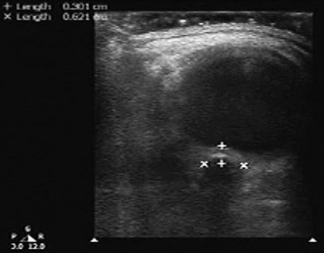 Сонографическая оценка острой патологии глаза, фото
