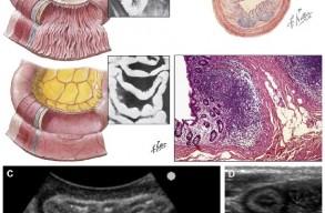 Тазовая боль: ультразвуковое исследование кишечника
