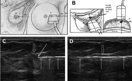 Вмешательства на молочной железе под ультразвуковым контролем - Статьи RH