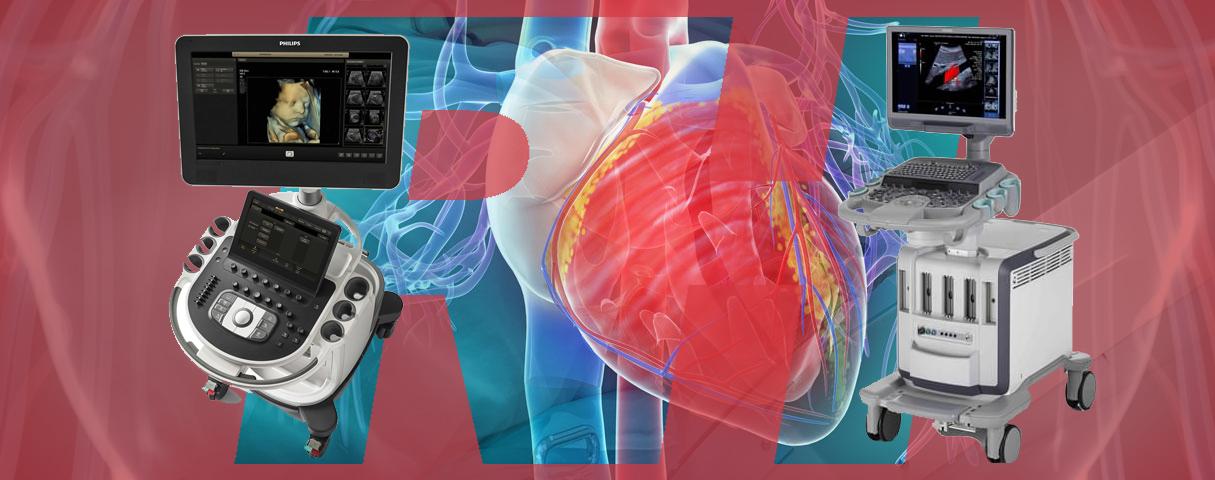 Представители экспертных УЗ-аппаратов для исследований в области кардиологии - Статьи RH