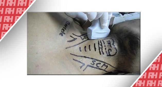 Ультразвуковая диагностика при нестабильных переломах шейного отдела позвоночника при травмах у детей - Статьи RH