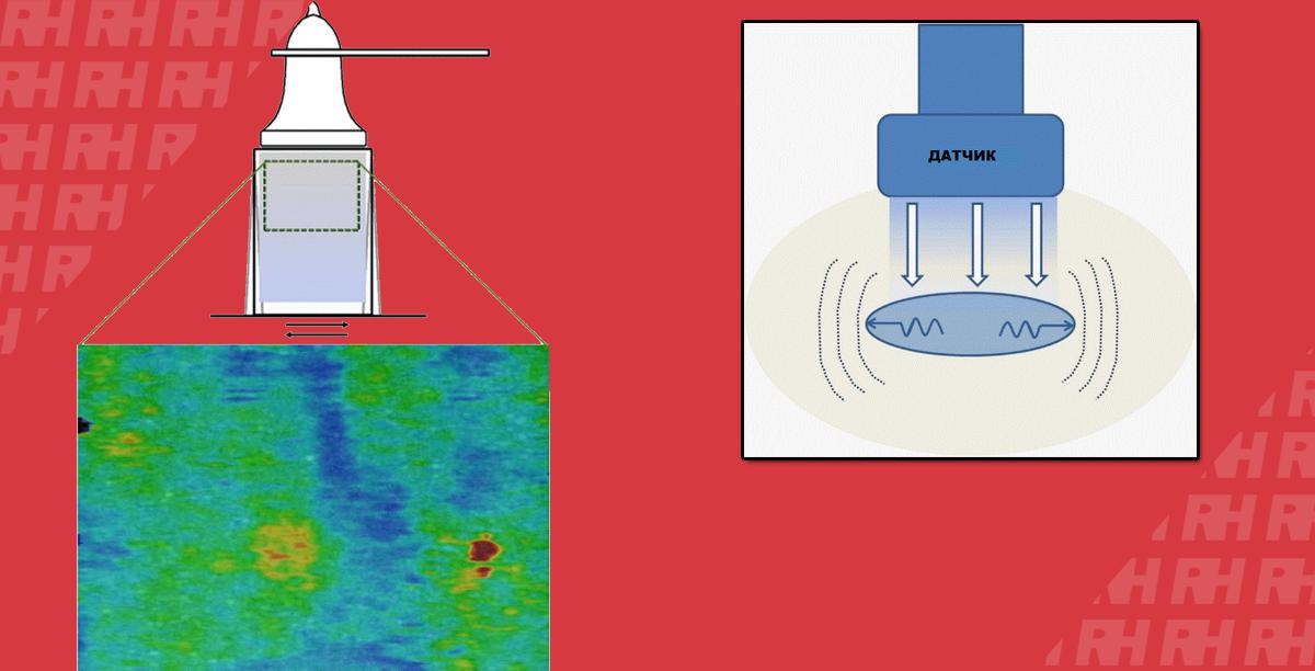Клиническое использование эластографии сдвиговой волны в исследовании опорно-двигательной системы - Статьи RH