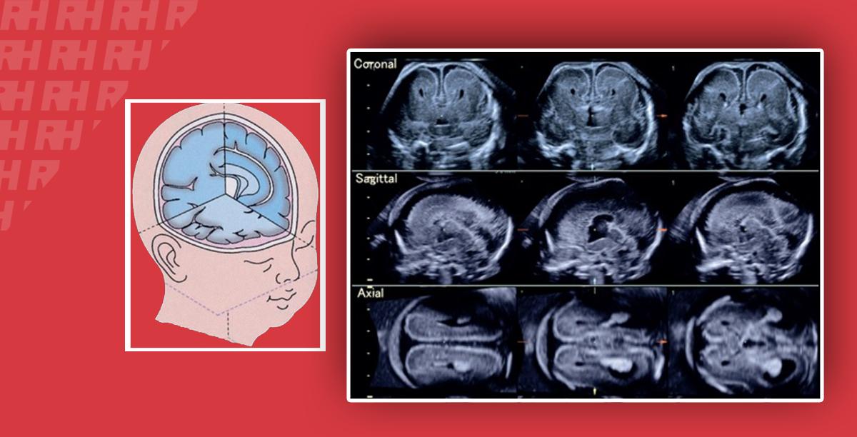 Трехмерная нейросонография – новая область в исследовании состояния плода - Статьи RH