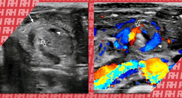 Экстренная ультрасонография желудочно-кишечного тракта у детей - Статьи RH
