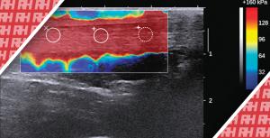Характеристика здоровых и поврежденных ахилловых сухожилий с помощью эластографии сдвиговой волны - Новини RH