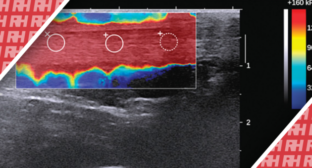Характеристика здоровых и поврежденных ахилловых сухожилий с помощью эластографии сдвиговой волны - Статьи RH