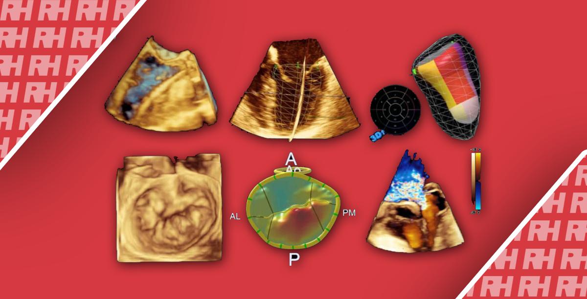 Обзор технологических достижений в ультразвуковой визуализации сердца - Статьи RH