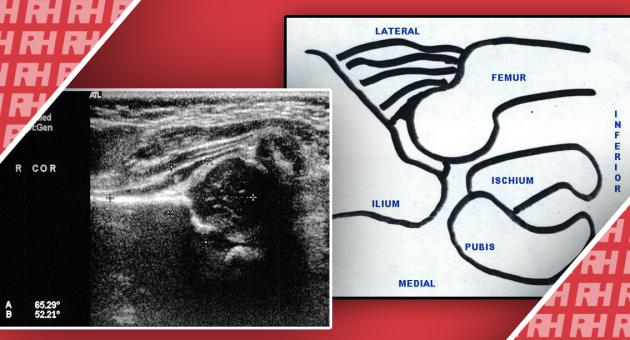 Ультразвуковая визуализация при дисплазии тазобедренного сустава - Статьи RH