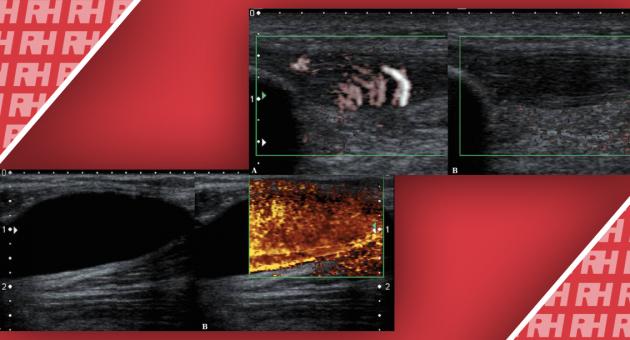 Диагностические ошибки при УЗИ костно-мышечной системы и способы их устранения - Статьи RH