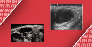 Ошибки при ультразвуковой диагностике поверхностных лимфатических узлов - Новини RH