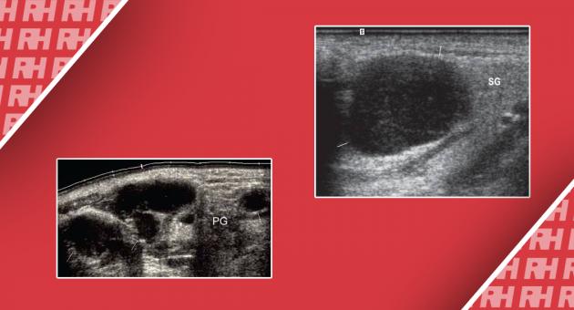 Ошибки при ультразвуковой диагностике поверхностных лимфатических узлов - Статьи RH