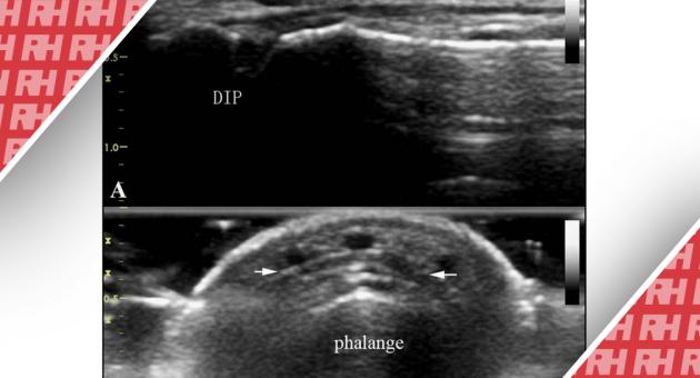 """Роль УЗИ в диагностике острой закрытой травмы """"молоткообразного"""" пальца - Статьи RH"""