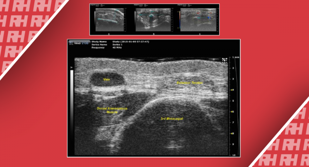 Сверхвысокочастотная ультразвуковая визуализация кисти: новый диагностический инструмент для хирургии на кисти - Статьи RH