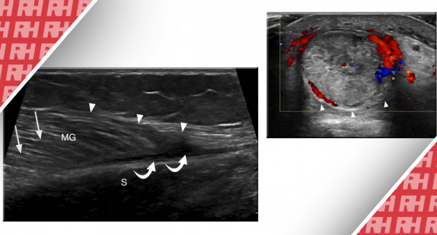 УЗИ костно-мышечной системы: повреждения нижней конечности. Часть 2 - Статьи RH