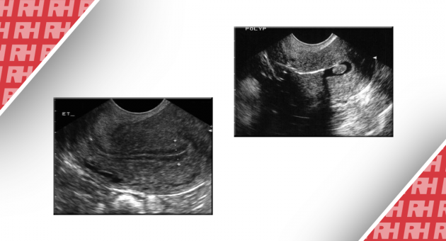 Роль трансвагинального УЗИ в лечении аномальных маточных кровотечений - Статьи RH