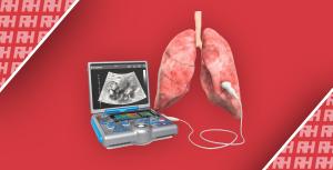 Рекомендации по УЗИ легких в медицине внутренних болезней. Часть первая - Новини RH