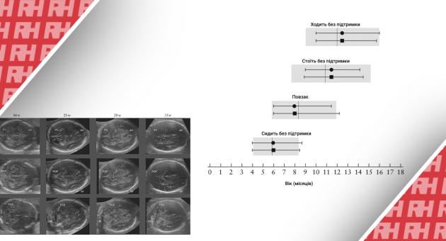 Международные стандарты для структур головного мозга плода, основанные на серийных ультразвуковых измерениях в рамках продольного исследования роста плода в рамках проекта INTERGROWTH ‐ 21st. Часть вторая - Новини RH