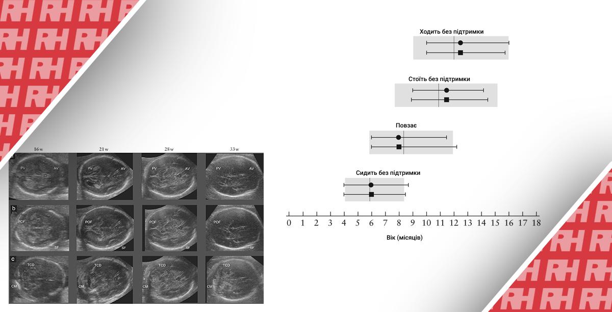 Международные стандарты для структур головного мозга плода, основанные на серийных ультразвуковых измерениях в рамках продольного исследования роста плода в рамках проекта INTERGROWTH ‐ 21st. Часть вторая - Статьи RH