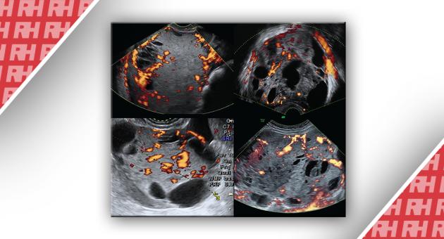 Ультразвуковые признаки злокачественных опухолей желточного мешка яичников (опухоли эндодермального синуса) - Статьи RH