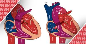 Пренатальная диагностика транспозиции магистральных артерий - Новини RH