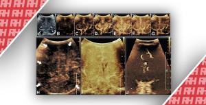 Визуализация перфузии головного мозга у новорожденных. Часть вторая - Новини RH