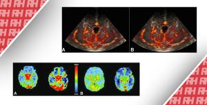 Визуализация перфузии головного мозга у новорожденных. Часть первая - Новини RH