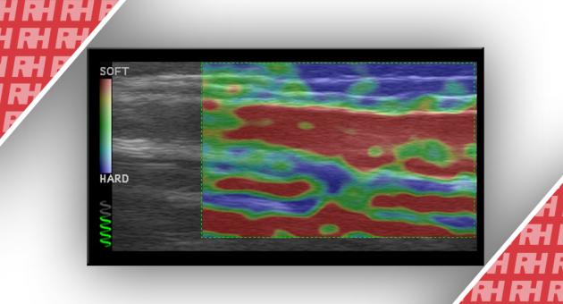 Использование ультразвуковой эластографии для определения возраста венозных тромбов. Оценка развития тромба у пациентов после склеротерапии - Статьи RH