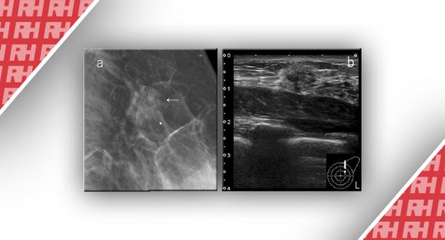 Общая система оценки комбинированной маммографии и УЗИ для скрининга рака груди в Японии - Статьи RH